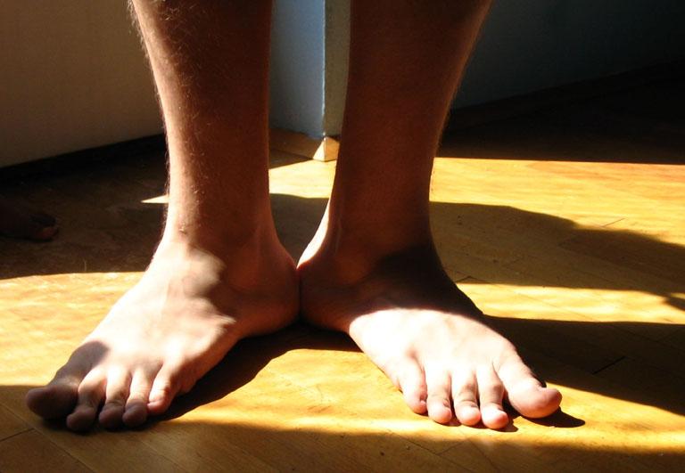 verdrehte füße