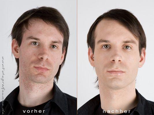 Vorher /Nachher