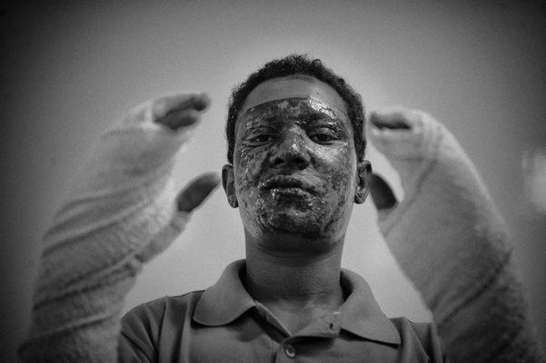 War victim, Hospital Benghasi