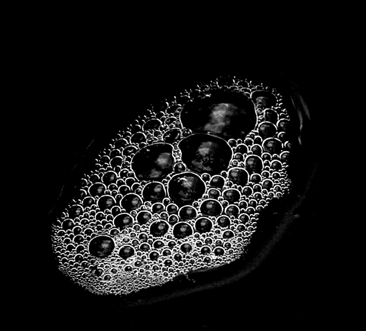 Wasserblasen 1