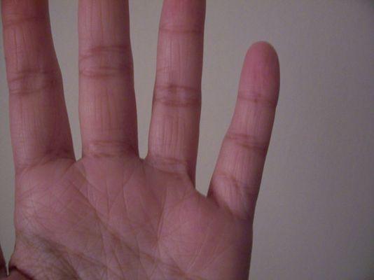 Wieviele Teile hat dein kleiner Finger?