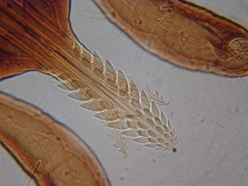 Zeckenkopf unter Mikroskop 500 x