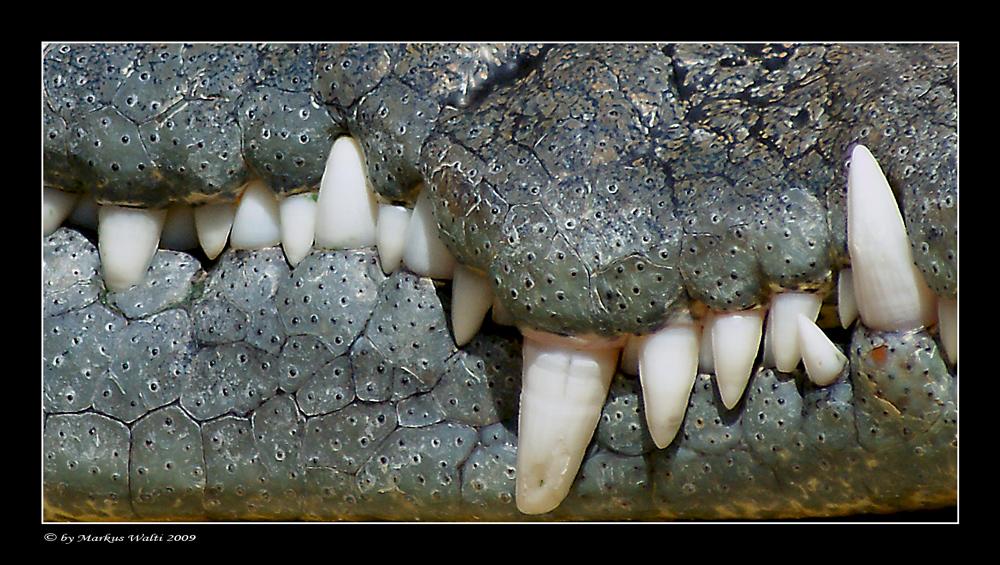 Albtraum aller Zahnärzte