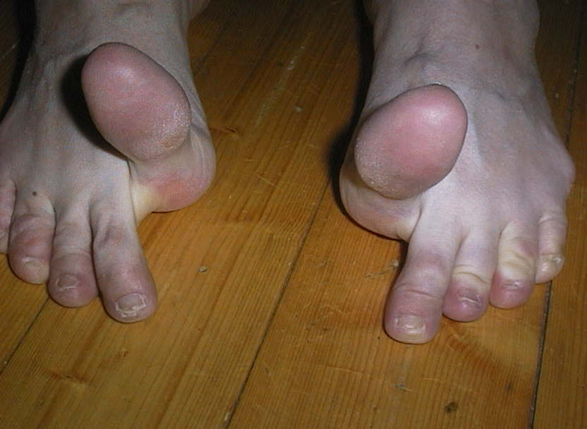 amazing toes