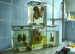 """"""" Anatomie im Glas """""""