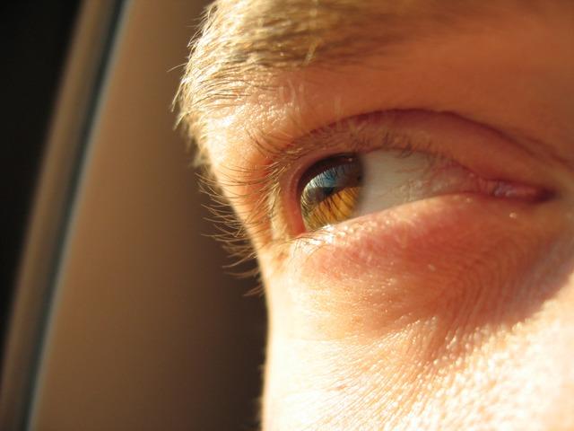 Auge...