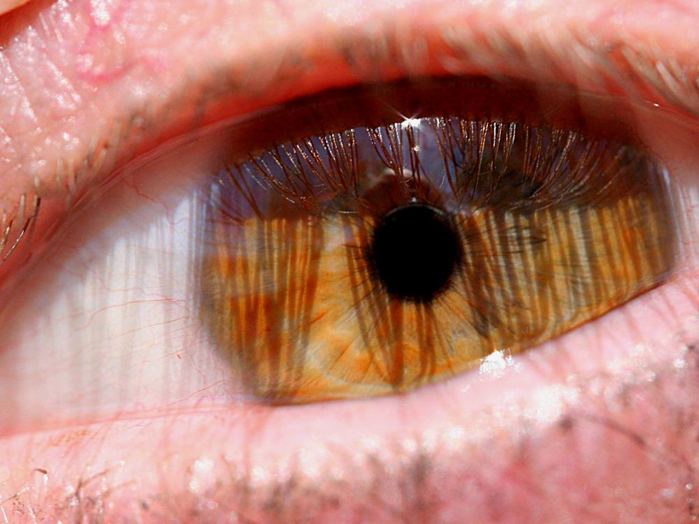 Auge um Auge...