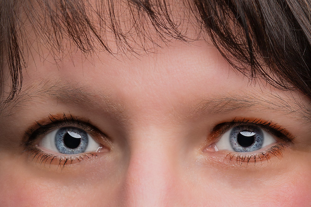 Weiße Augen Auf Fotos