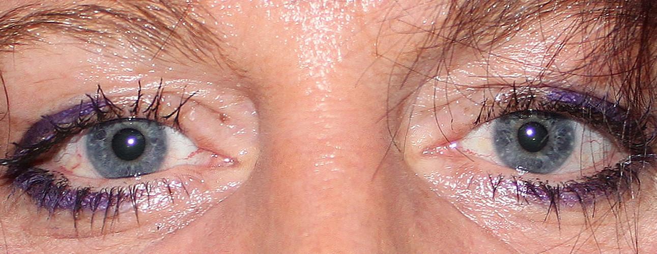 Augen-Foto-Blick