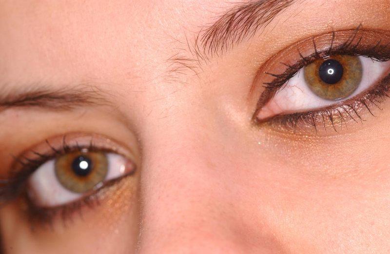Augenringe;)