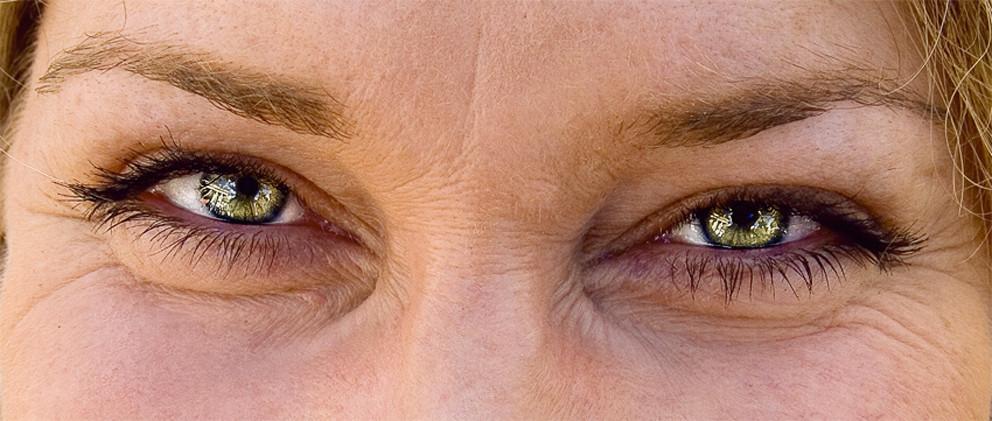 Augenspiegel