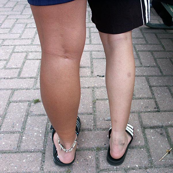 Das harte Training macht ganz schön dicke Beine Foto