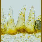 Das Stiefmütterchen (Chromoplasten in Papillen, Blütenblattquerschnitt)