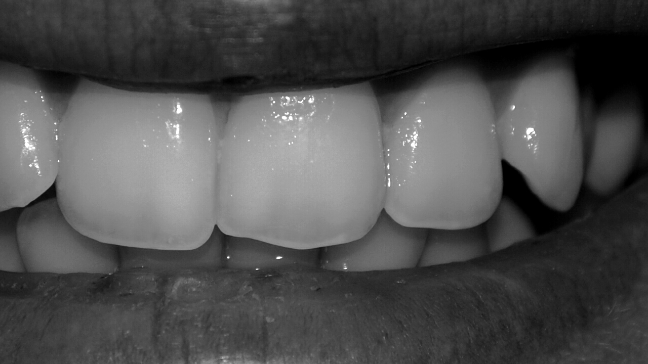 De toutes ses dents. (2)