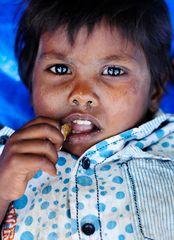 Erkältung, Fieber, Hunger - Slumkid in Goa