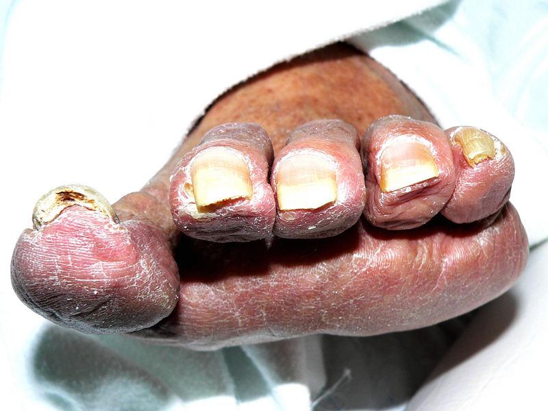 Five old sweet toes (oder Großmutter von anterior inferior)