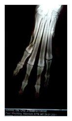 Fraktur des äußeren Mittelpfotenknochens