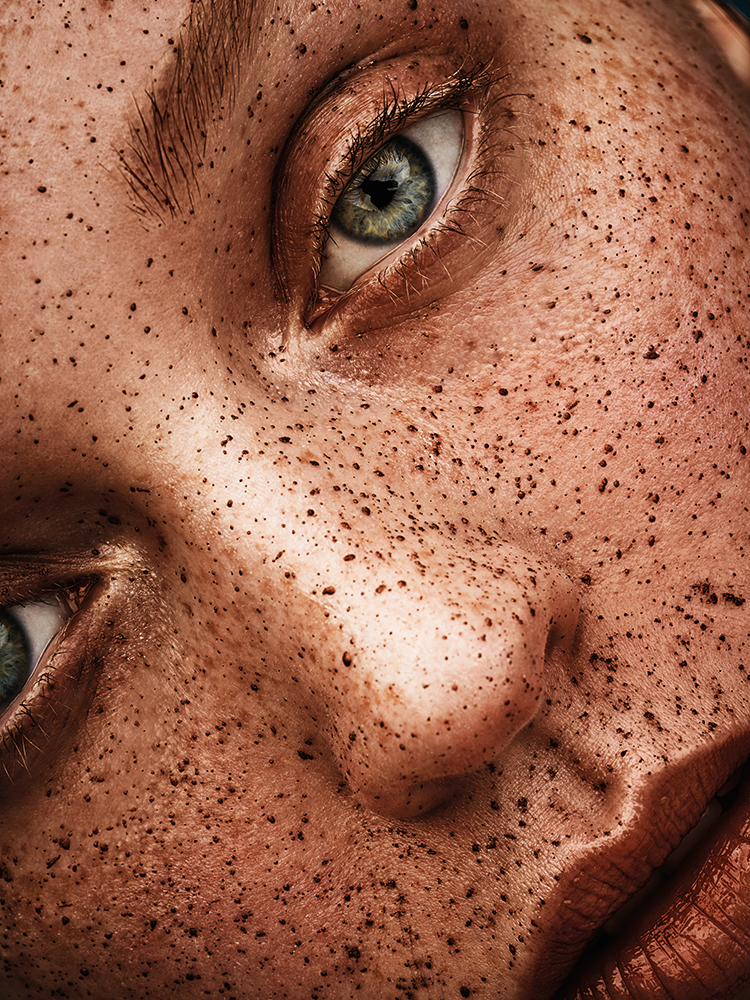 freckles deluxe