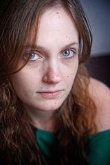 Frederike – Itchy I