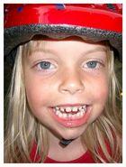 Loser Zahn