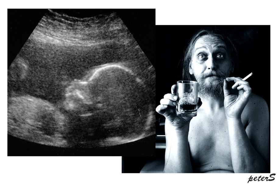 Mein Weib bekommt ein Baby und ich die Krise