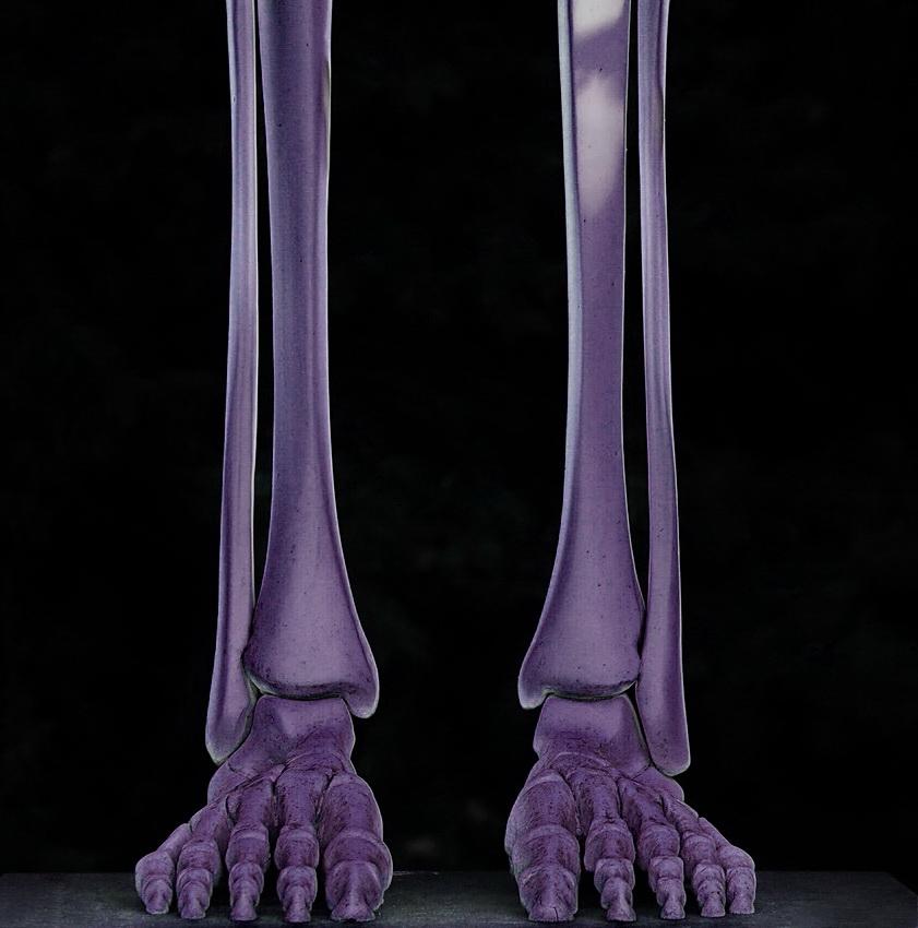 milka legs
