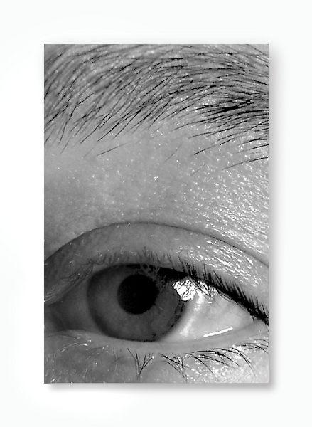 - my eye -