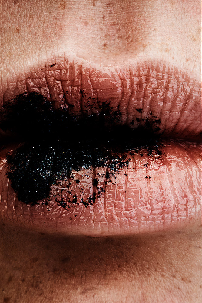PIGMENTS MOUTH