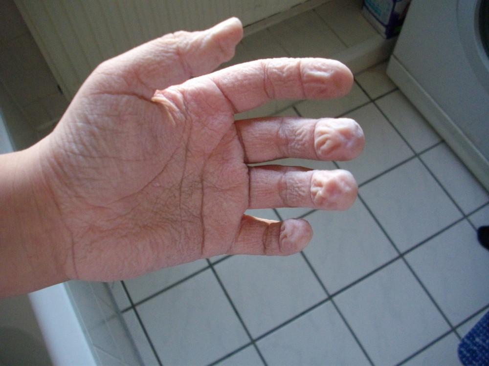 Schrumpel Hand