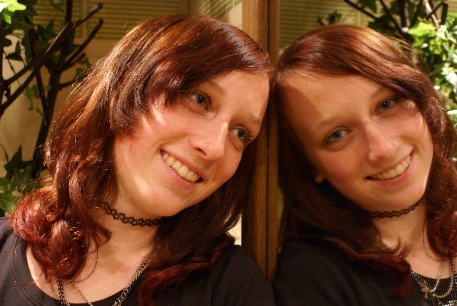 Siamesiche Zwillinge