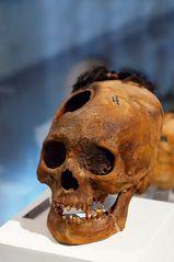 Trepanierter Inka-Schädel
