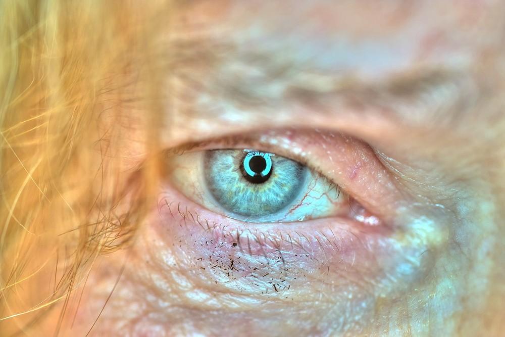 Urmels Auge