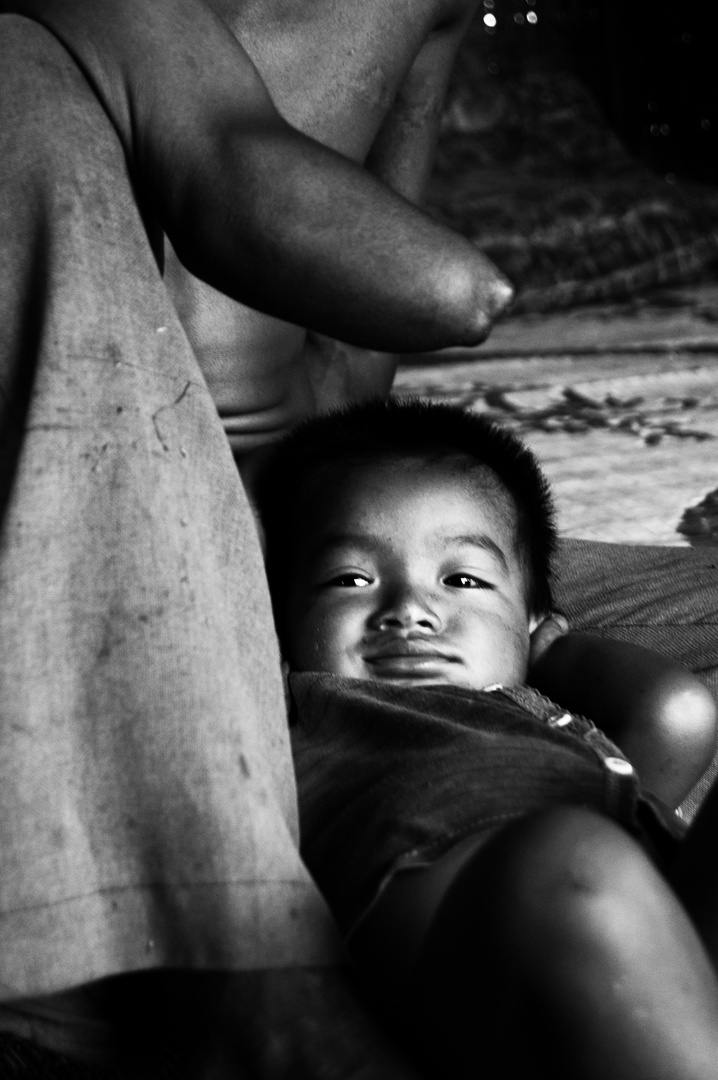 Victime de bombes à sous munitions, Laos