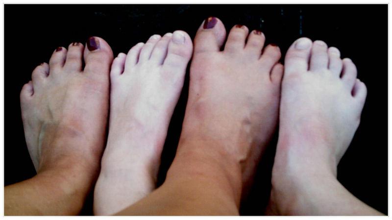 Vier Füße!