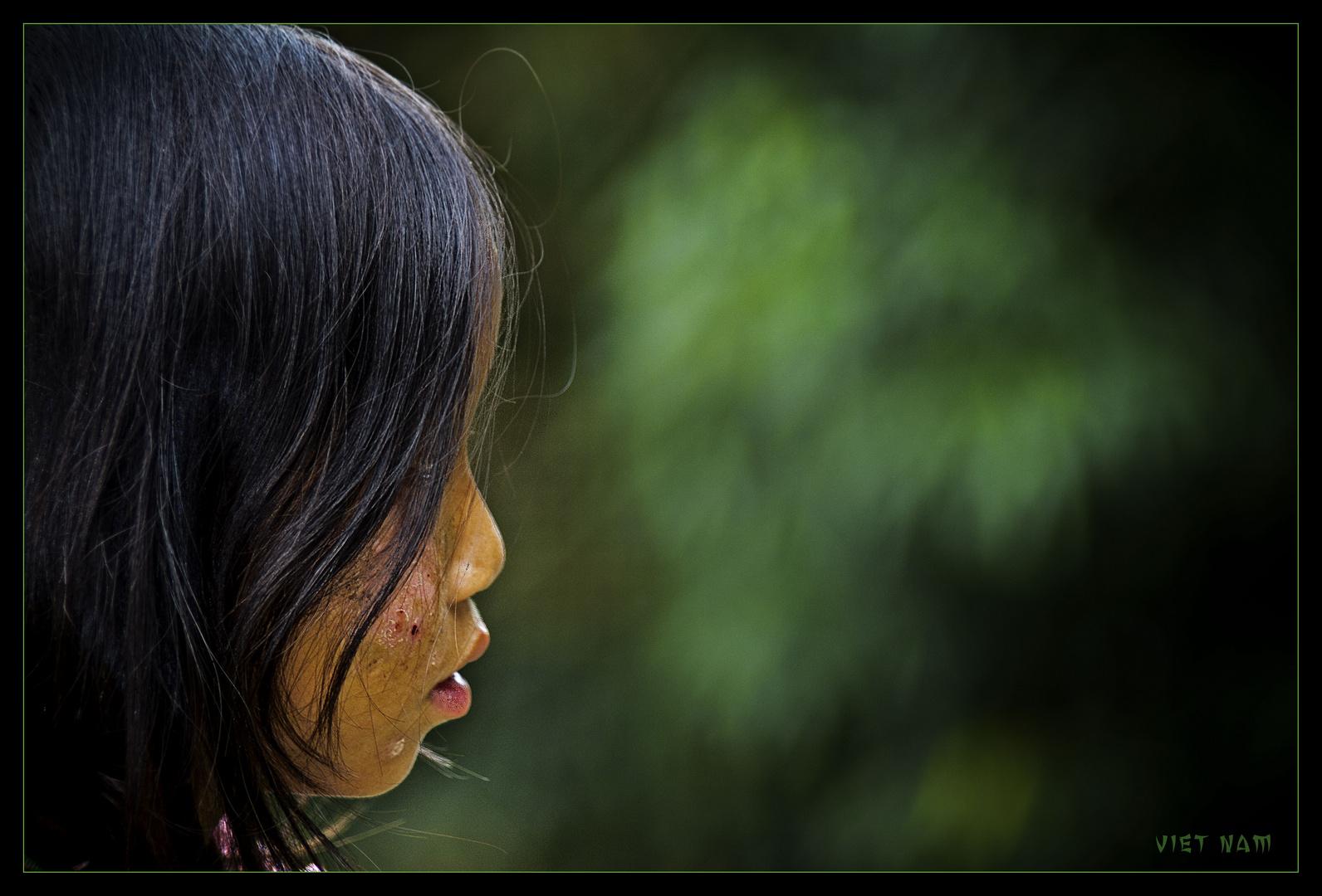 Vietnam [1]