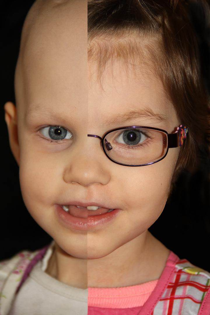 Welt- Kinderkrebstag - 15. Februar