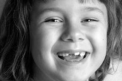 Zahnwuchs